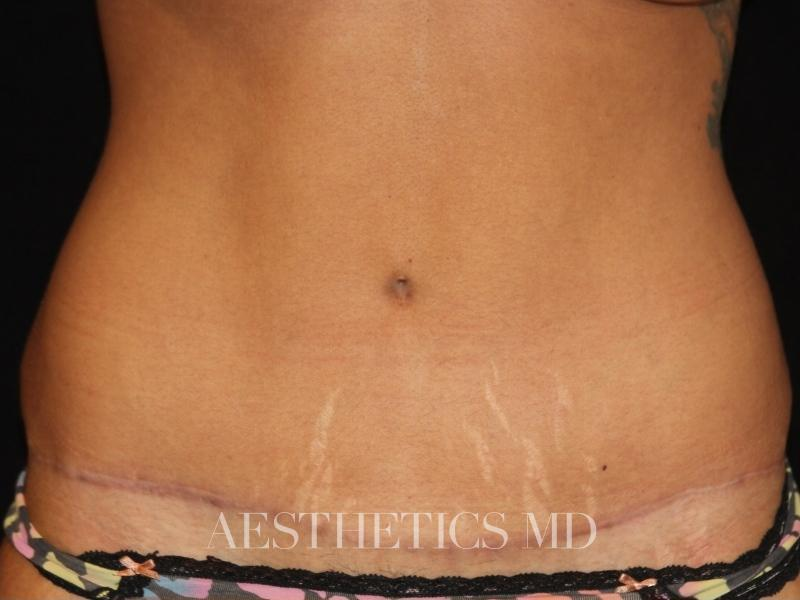 Abdominoplasty Newport Beach | Before & After Photo