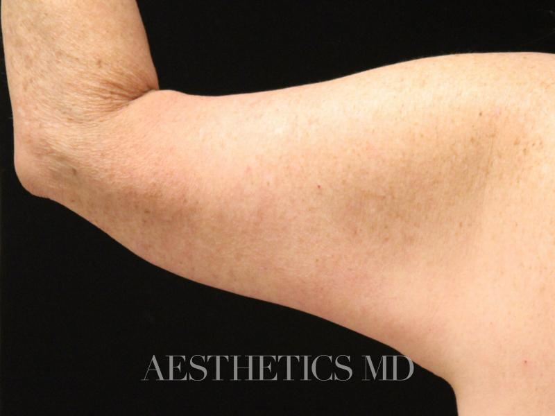 Brachioplasty Newport Beach | Before & After Photo