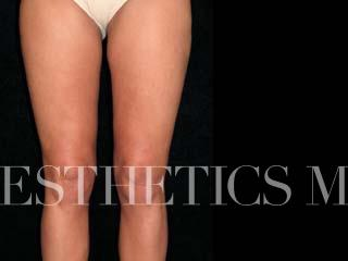 Liposuction Newport Beach | Before & After Photo