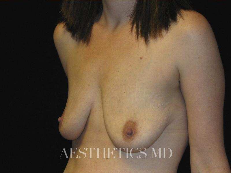 Breast augmentation with lift Newport Beach | Before & After Photo