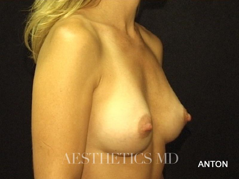 Breast augmentation Newport Beach | Before & After Photo