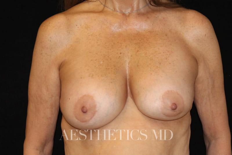 Breast implant revision with lift Newport Beach | Before & After Photo