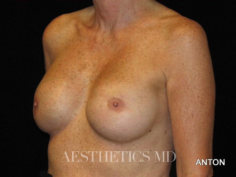 Breast implant revision Newport Beach | Before & After Photo