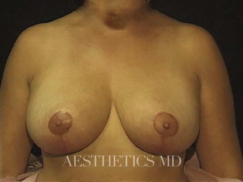 Breast lift Newport Beach | Before & After Photo