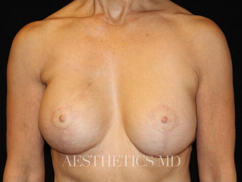 Breast reconstruction Newport Beach | Before & After Photo