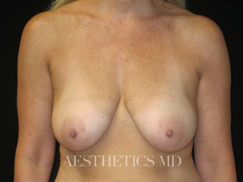 Breast reduction lift without implants Newport Beach | Before & After Photo