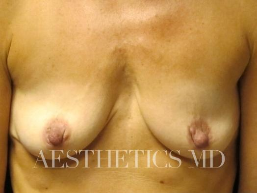 Nipple revision Newport Beach | Before & After Photo