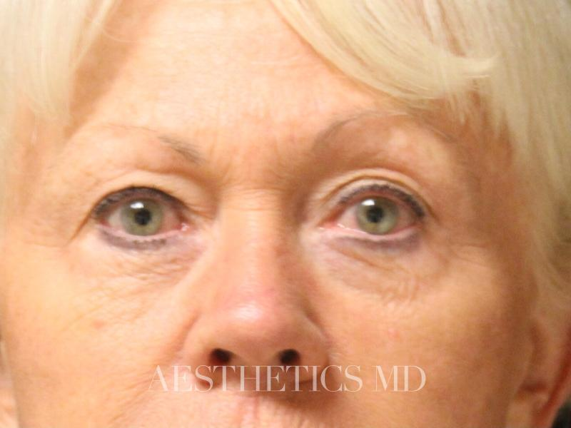 Blepharoplasty Newport Beach | Before & After Photo
