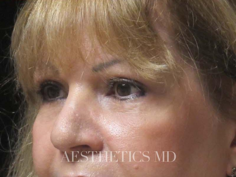 Blepharoplasty before & after photo