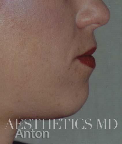 Chin and cheeks Newport Beach | Before & After Photo