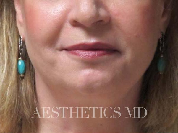Face neck liposuction Newport Beach | Before & After Photo