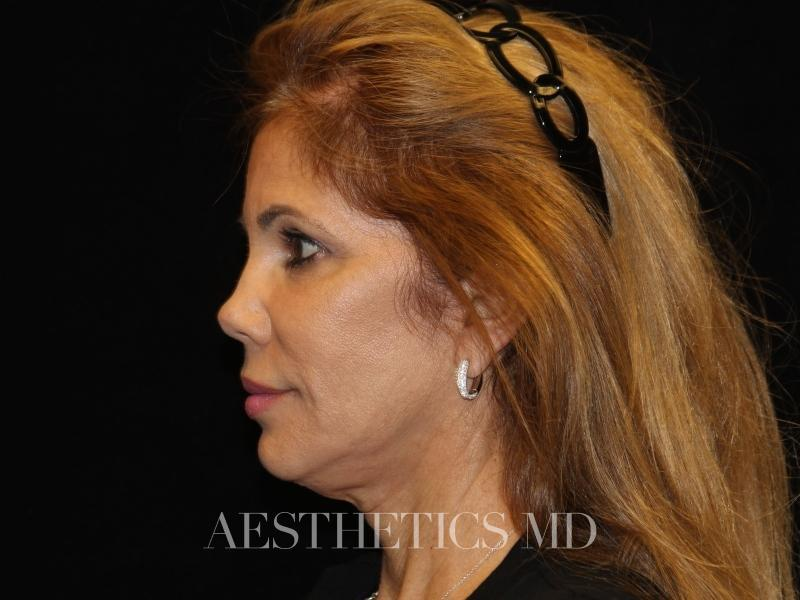 Facelift Newport Beach | Before & After Photo