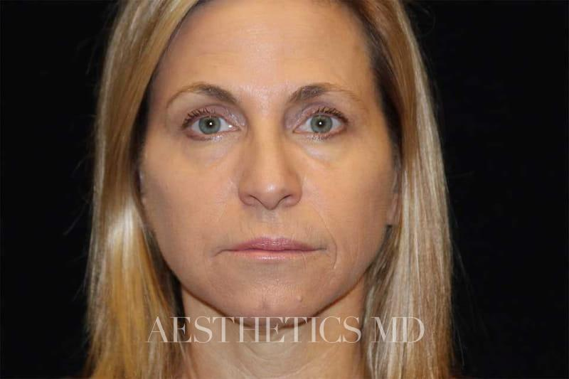 Injectables Newport Beach | Before & After Photo