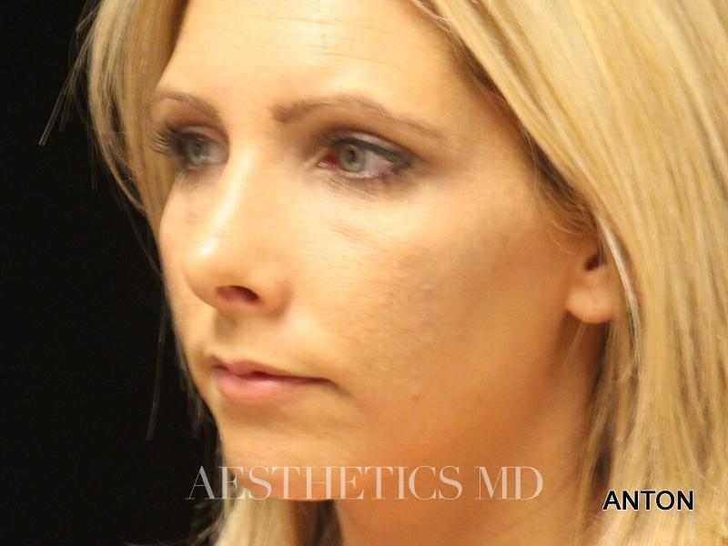 Rhinoplasty Newport Beach | Before & After Photo